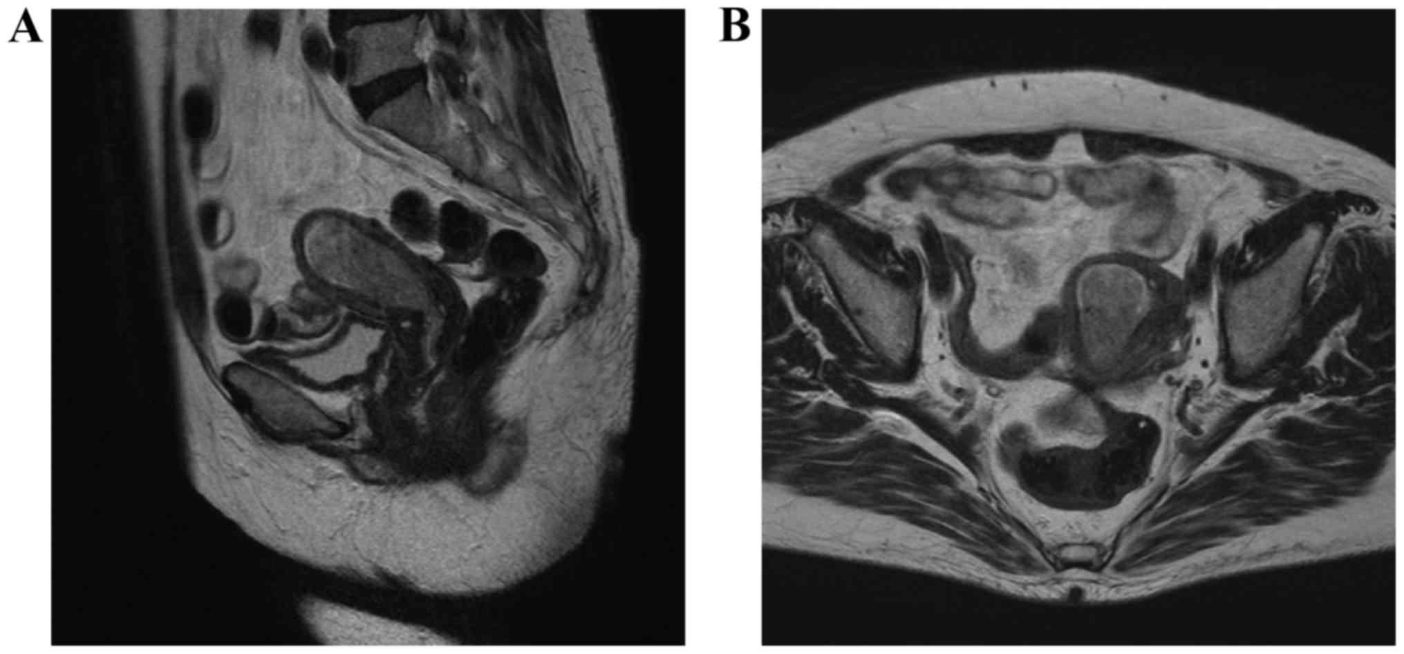 papillary thyroid cancer can it spread