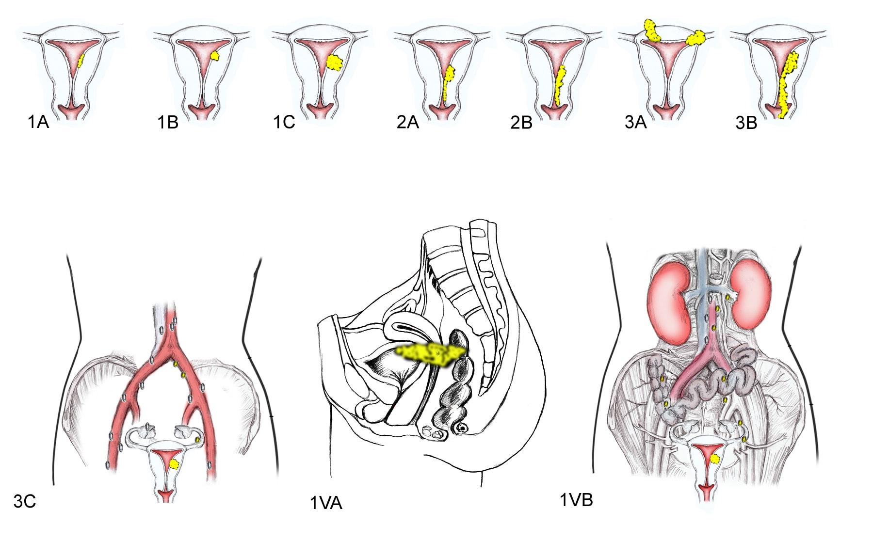 endometrial cancer peritoneal carcinomatosis