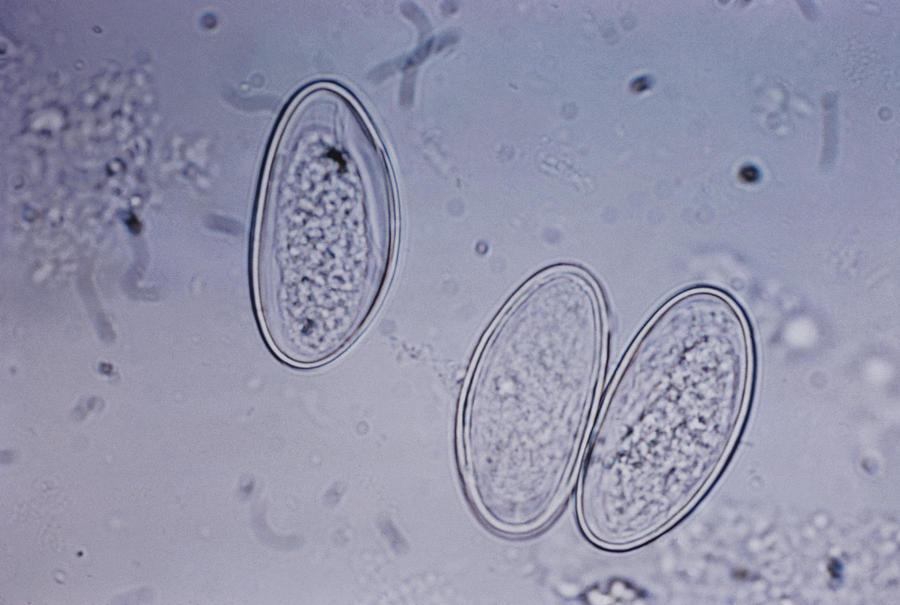 enterobius vermicularis kind parazitii nume reale