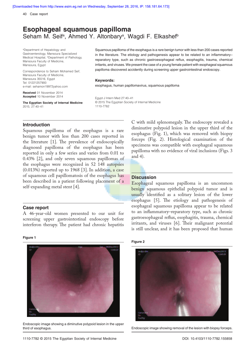 esophagus and papilloma reteta suc detoxifiere