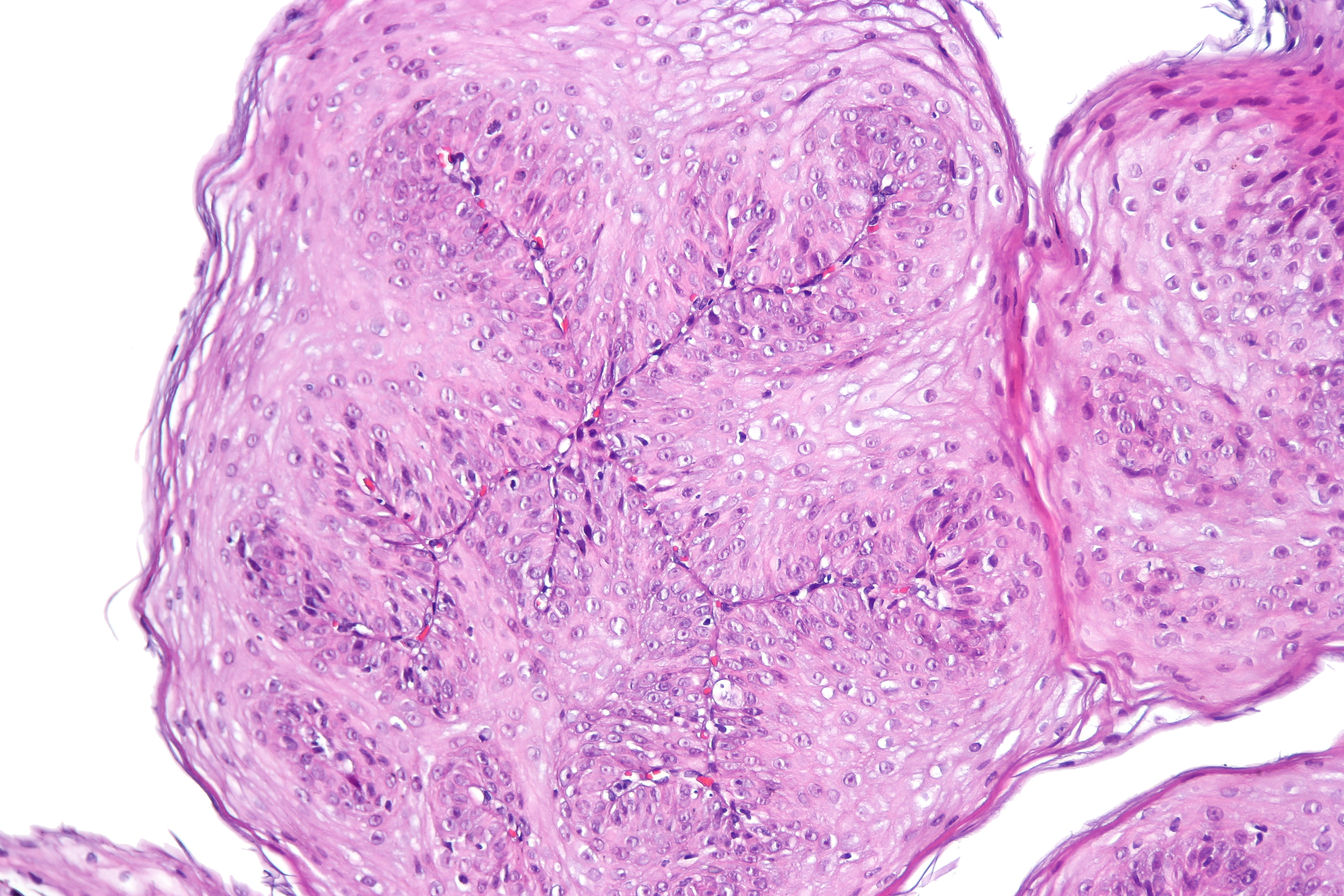 esophagus and papilloma