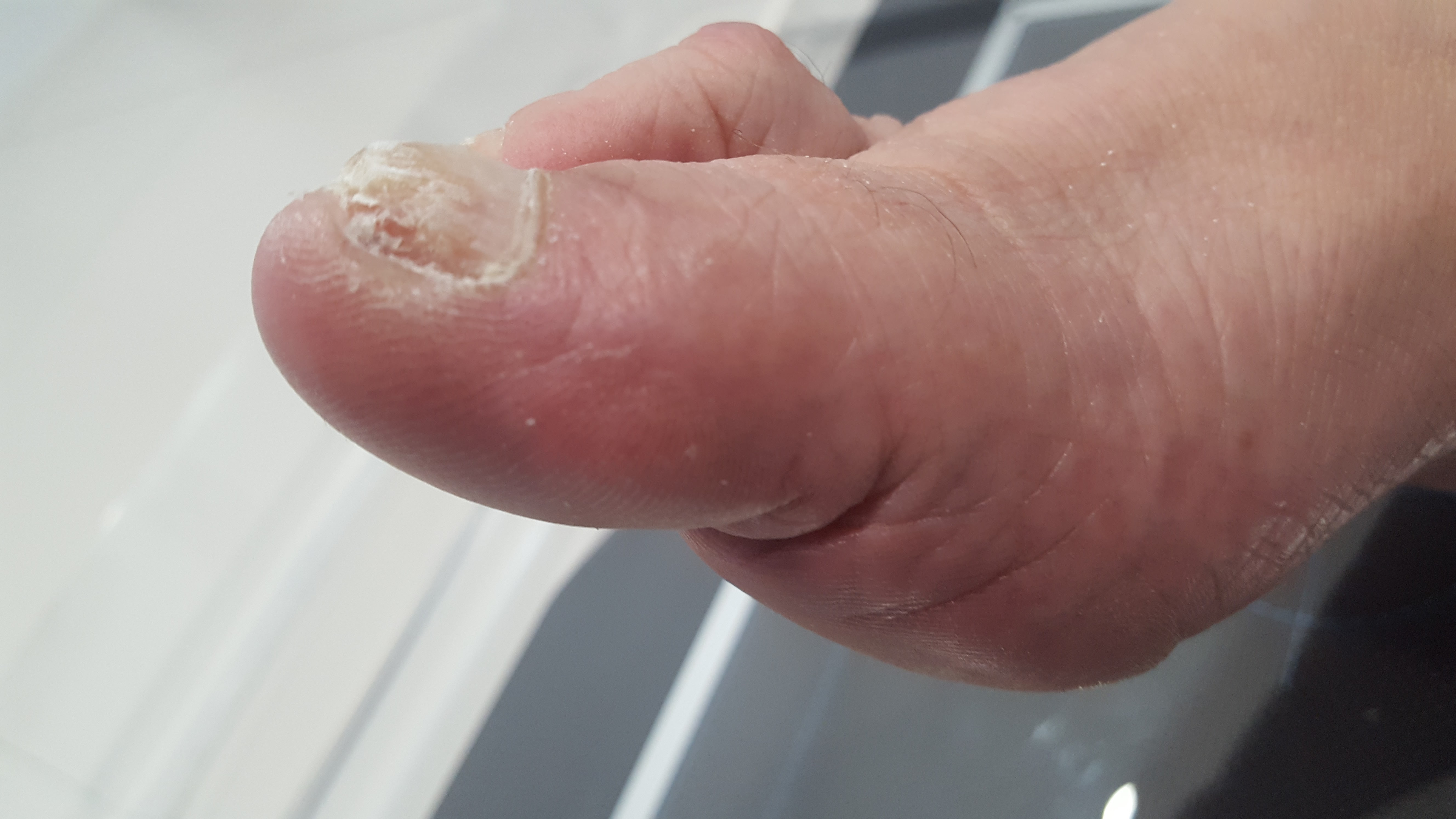 foot wart with hole
