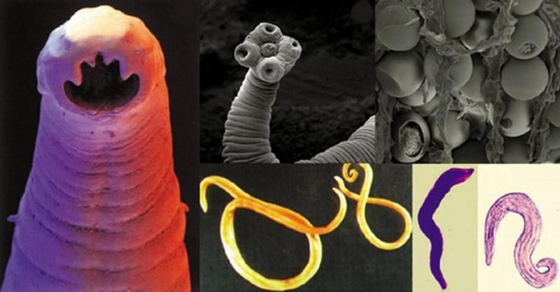 parazity v tele ako sa ich zbavit