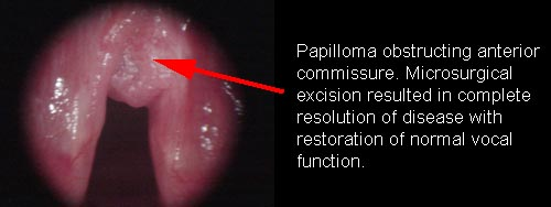 causes laryngeal papillomas another term for hpv