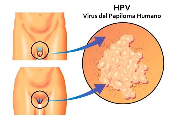 reteta cura de detoxifiere hpv impfschema gardasil 9