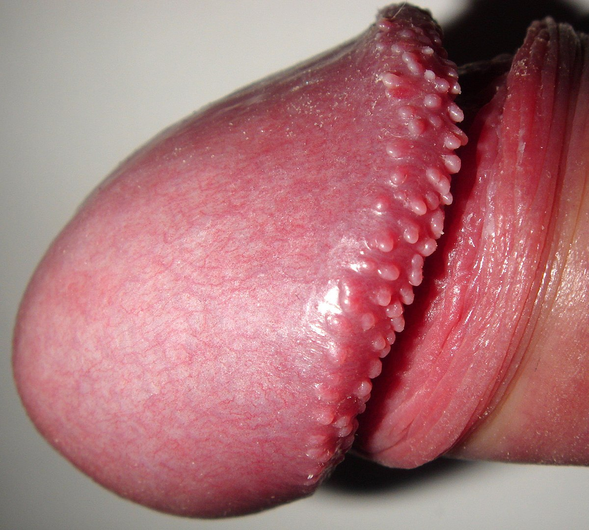 vestibular papillae go away on its own cancer la san la copii