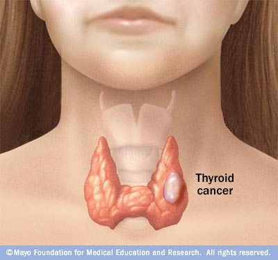 papillary thyroid cancer weight loss