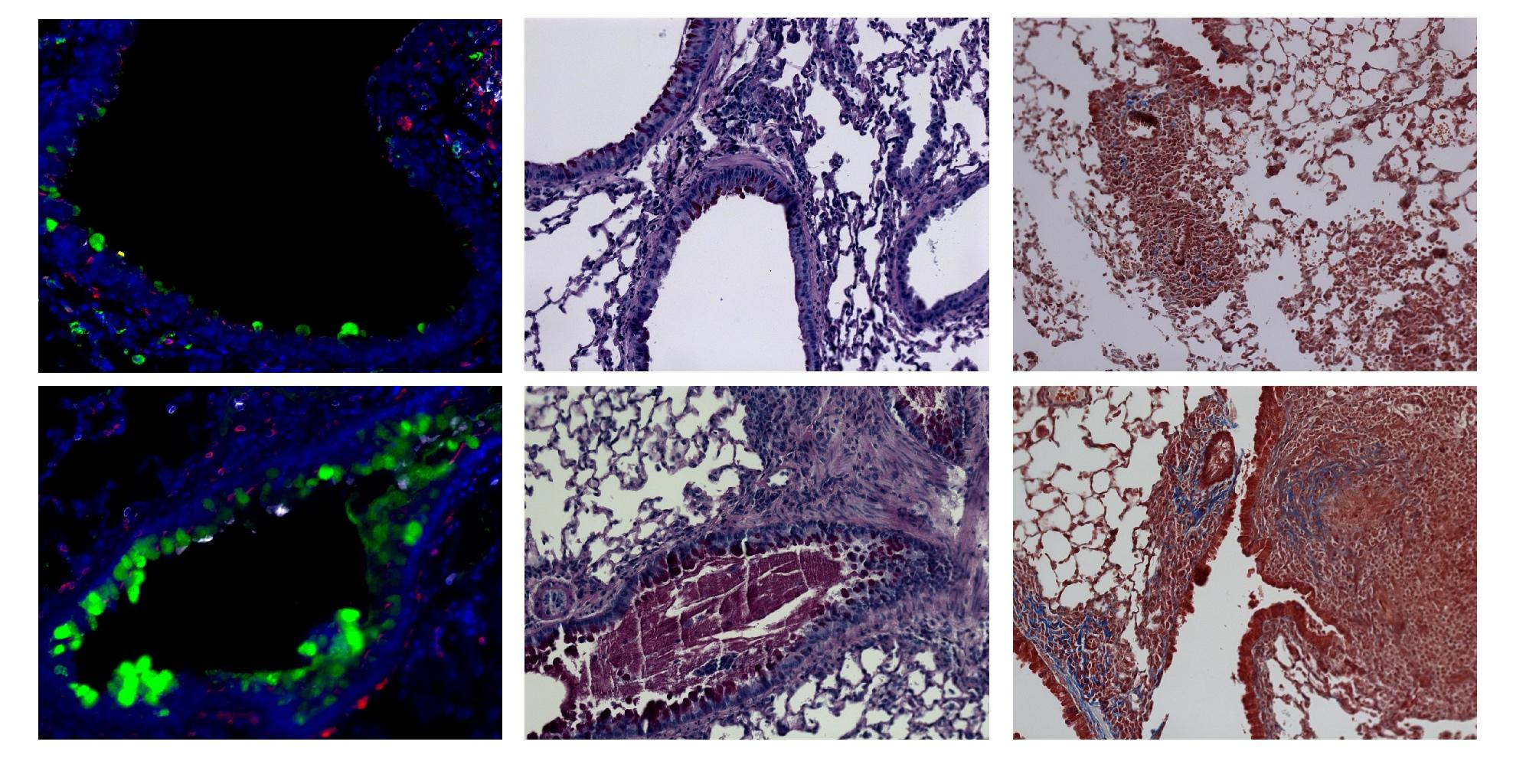 papilloma virus negli uomini detoxifiere suc de mere