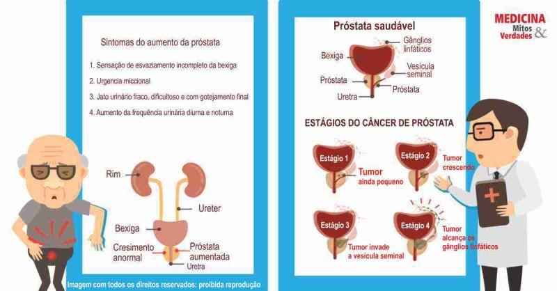 cancer de prostata definicao sinus papilloma removal