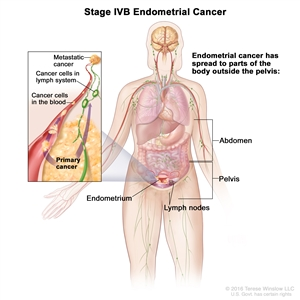 Cancerul de Endometru - Anexa 20