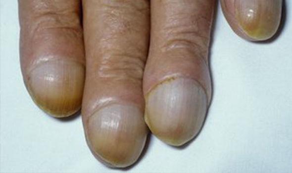 fingertip cancer