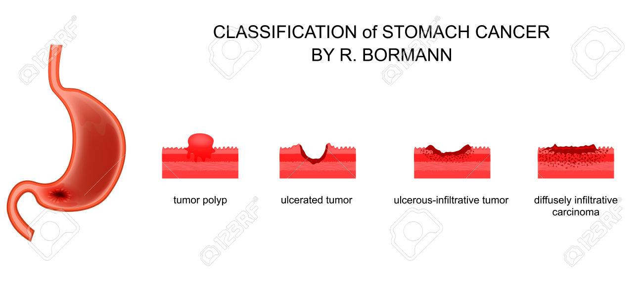 gastric cancer borrmann classification