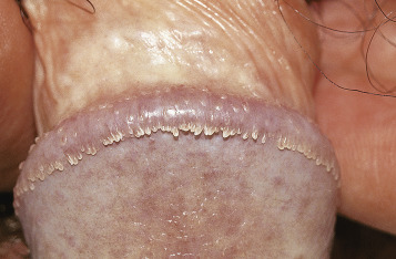 HPV (Human Papilloma Virus)   ARAS – Asociatia Romana Anti-SIDA