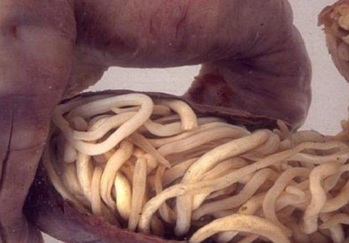 gljivice i paraziti u stolici