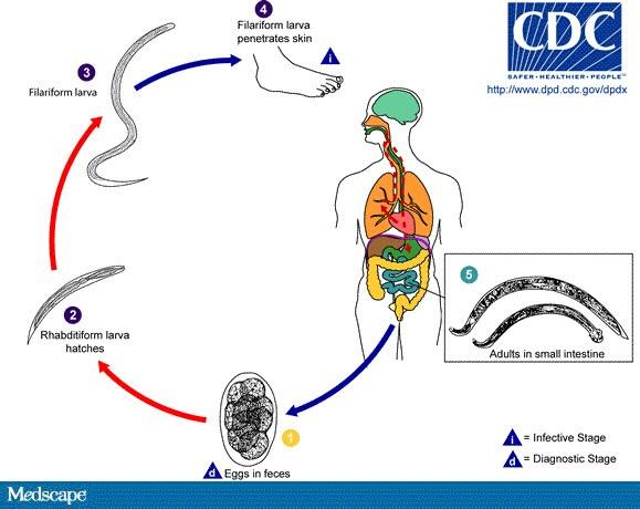 helminth disease tricou parazitii original