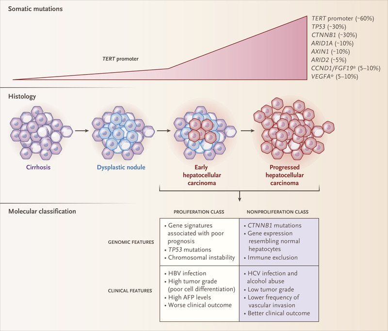 The gene therapy conditioned by nanotechnology in hepatocarcinoma , NANOGEN