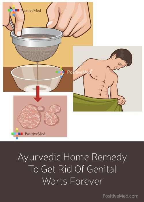how to remove papilloma at home