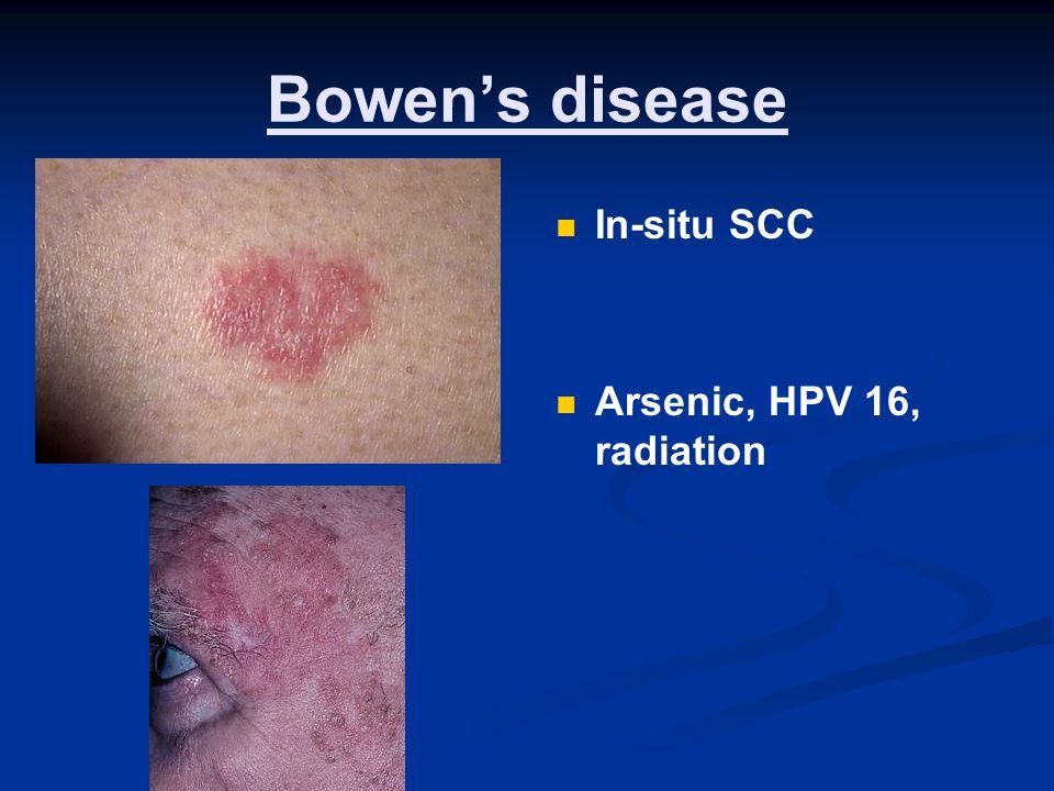 hpv bowen disease parazitii in corpore sano
