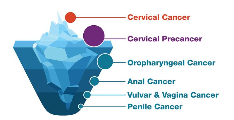 hpv cancer cause hpv modalita contagio