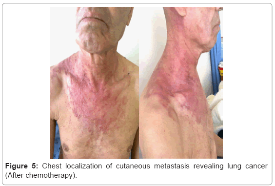 cancer metastatic to lung virus del papiloma tipo 1