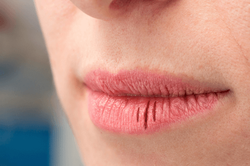 hpv dry mouth