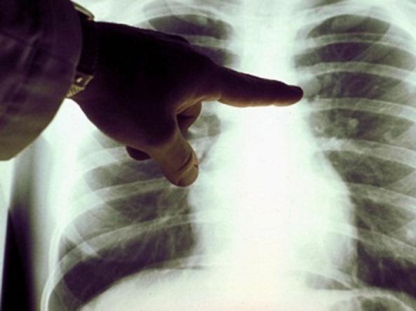 hpv e tumore al polmone grasu xxl cheloo