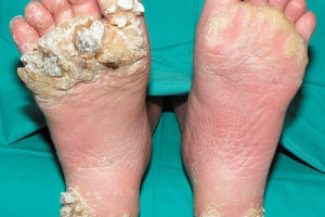 hpv foot warts pictures