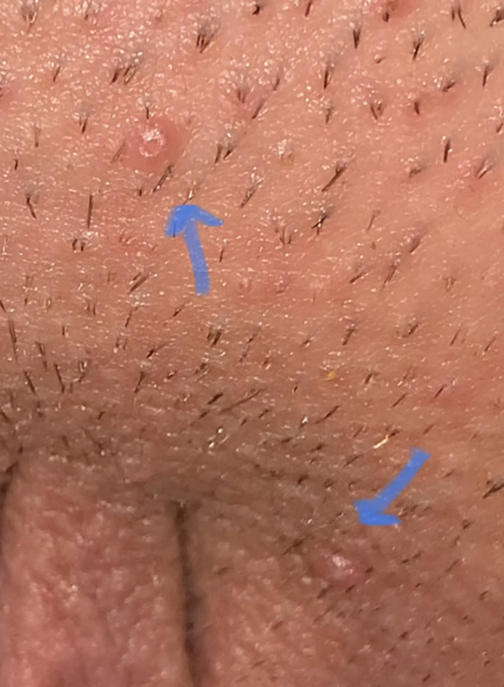 hpv from herpes
