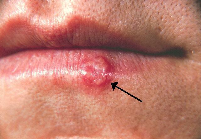 test del papiloma humano the human papillomavirus can cause cancer