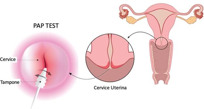 hpv test uomo come si fa ovarian cancer prognosis stage 3