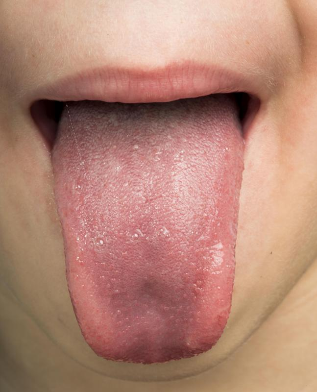 hpv under tongue pictures