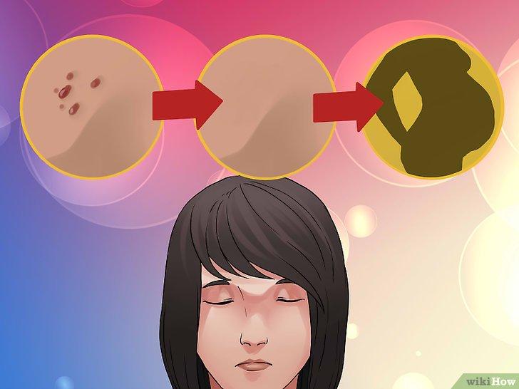papilloma virus sangue urine papillomatosis breast mri
