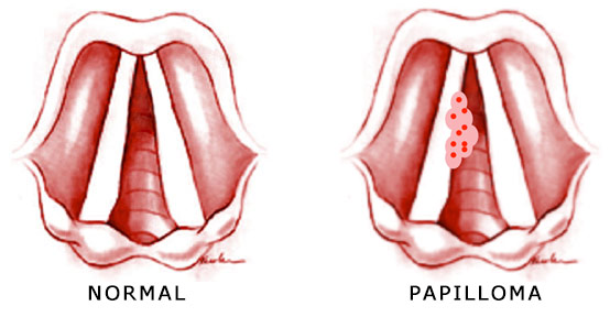 hpv virus on vocal cords