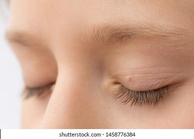human papillomavirus on eyelid helmintox gintarine