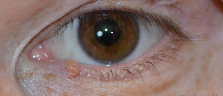 human papillomavirus on eyelid cancer nazofaringian simptome