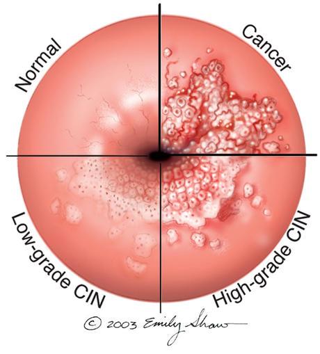 Infecţia cu virusul HPV (Human papilloma virus)
