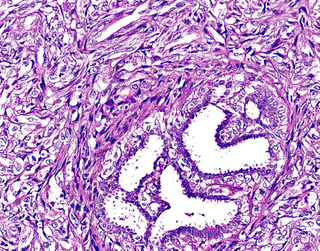 intraductal papilloma breast pathology outlines hpv causes fever
