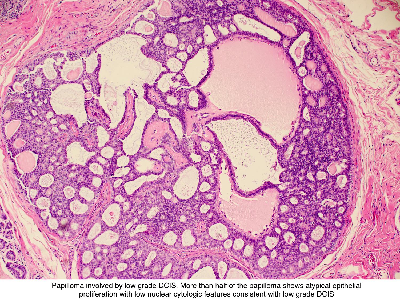 cancer pulmonar tratament febra unistavanje parazita u organizmu