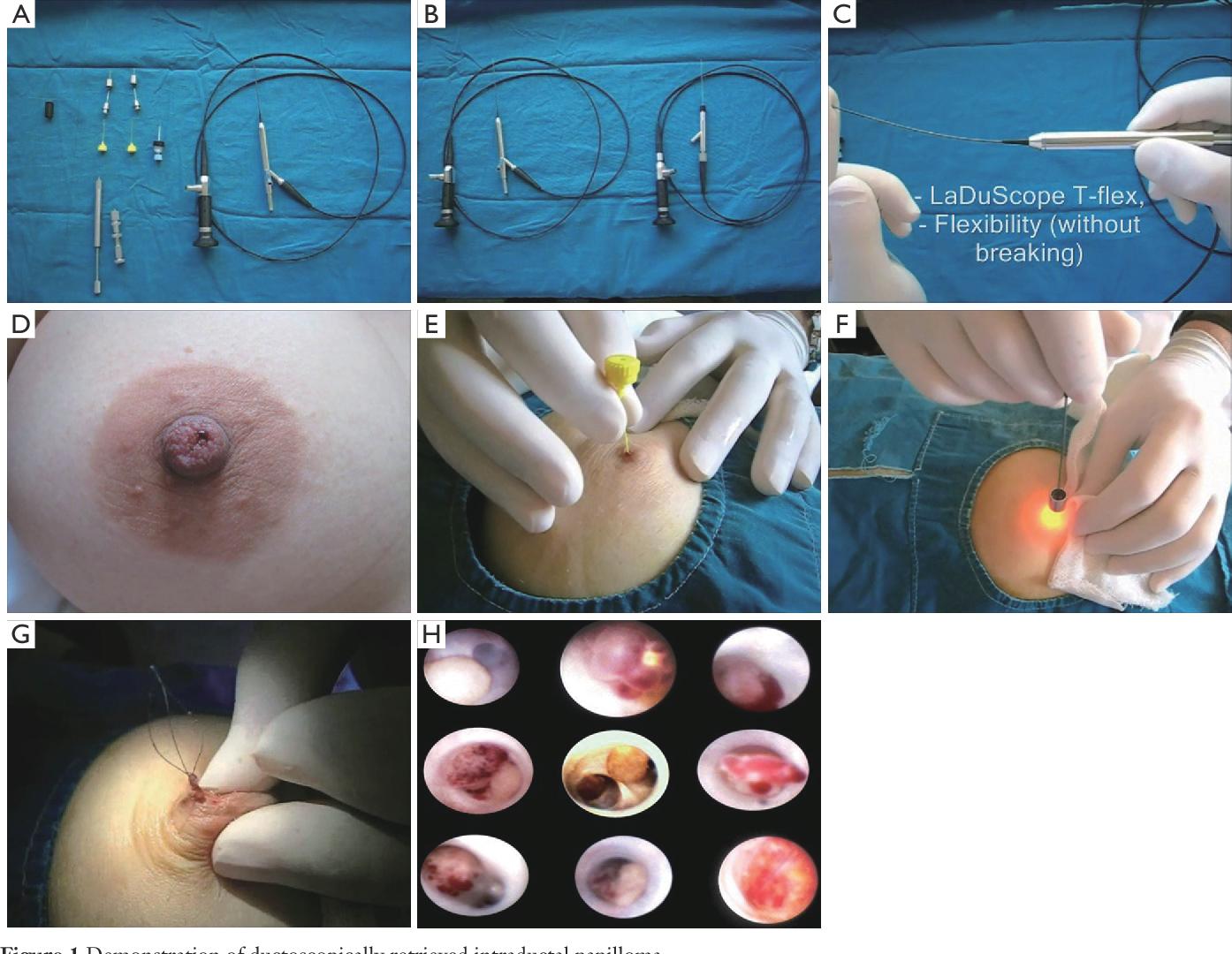 intraductal papilloma discharge hpv lazer tedavisi