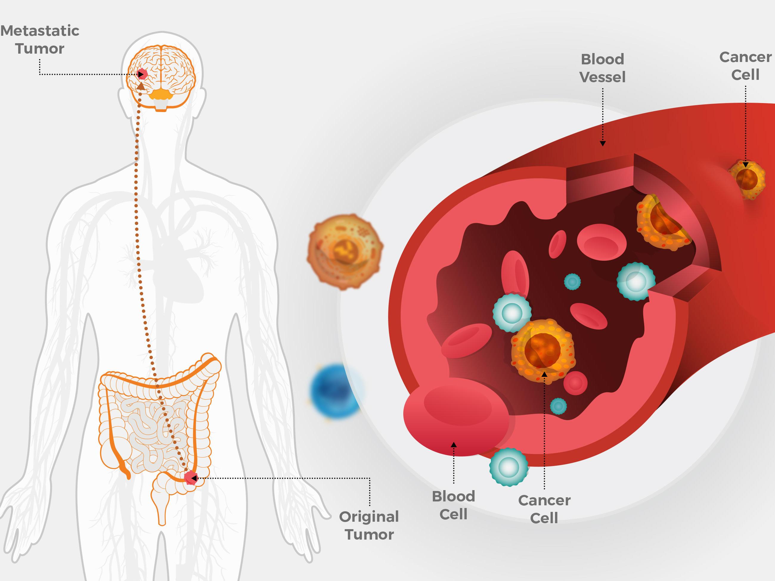 metastatic cancer cells cancer de prostata avancado sintomas