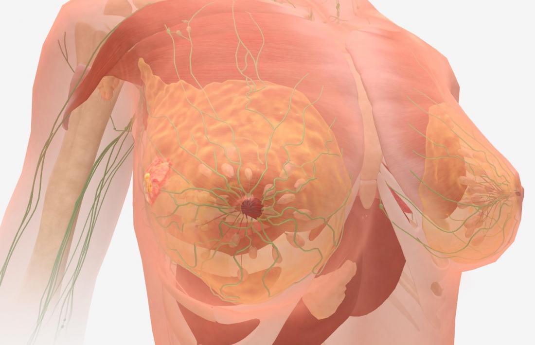 metastatic cancer fourth stage humanen papillomavirus (hpv 16 und 18)