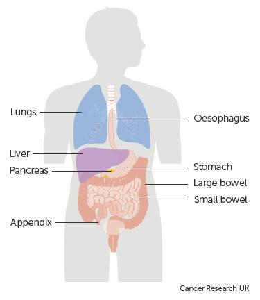 pancreatic cancer surgery papiloma humano desarrollo