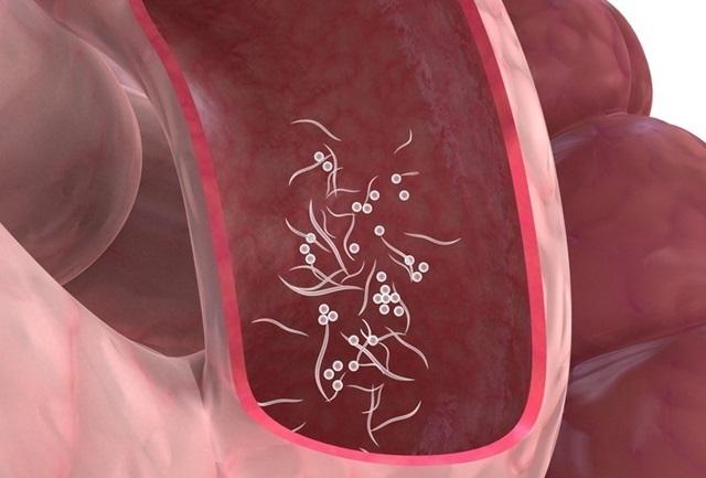 cancer de ficat ultima faza