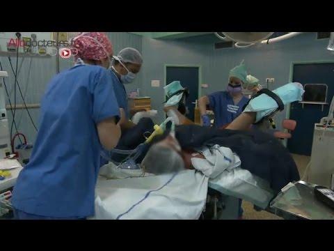 operation du papillomavirus