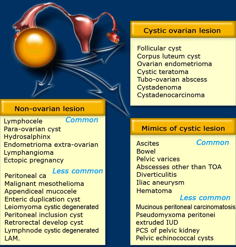 Tratamentul chisturilor varicoase in vagin