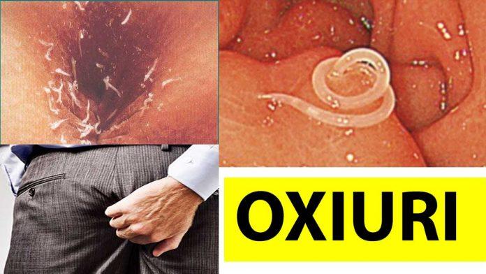 Oxiuroza (oxiuri) - ce înseamnă Oxiuroza (oxiuri) - definiţie completă