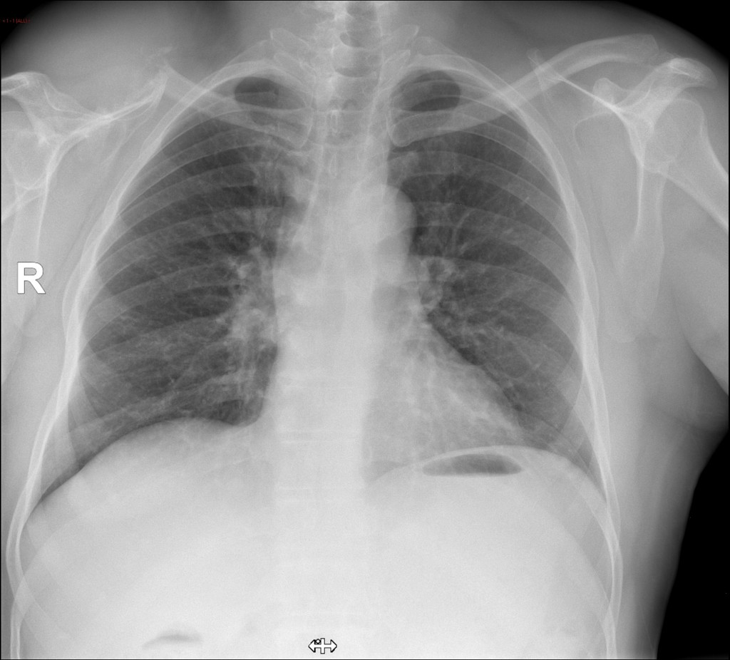 papillary thyroid cancer metastasis to bone papiloma humano n1