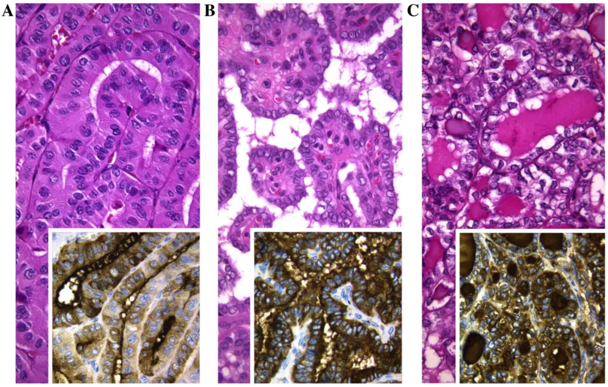 papillary thyroid cancer tall cell variant
