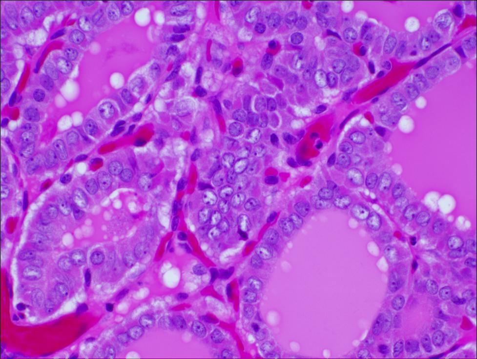 papillary thyroid carcinoma variant follicular cancerul de pancreas doare