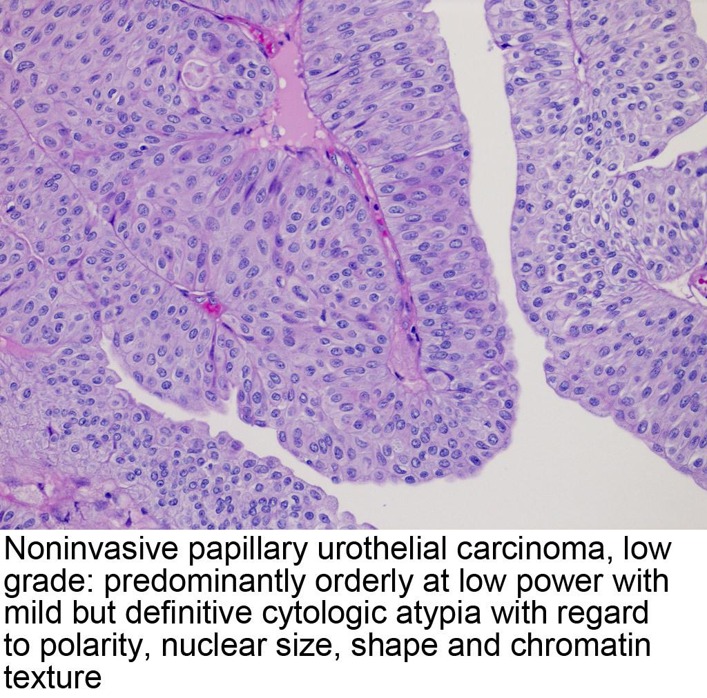 papillary urothelial carcinoma histopathology